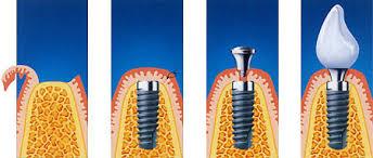 implantatologia epdent